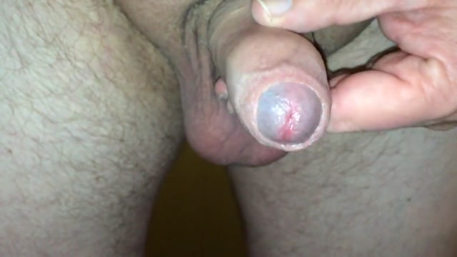 A handful of warm sperm white sore on anus