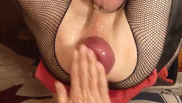 Double fisting a giant prolapse penny prite porn