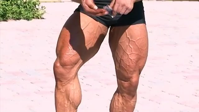 Petr Vanis Vascular Legs - Full Video Coming Soon Is hookup your best friend's brother wrong